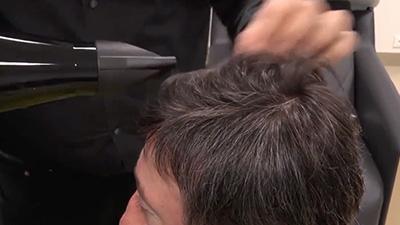 hair restoration for men