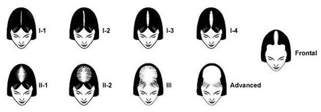 women's hair restoration,women's hair loss,Cesare Ragazzi