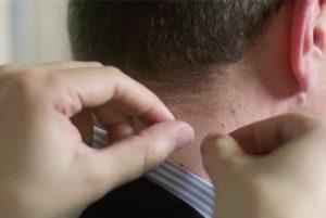 Havogen 5 patch on neck