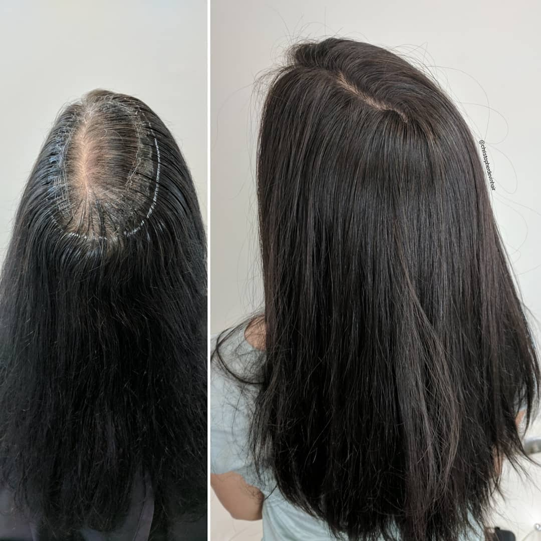 womens-hair-restoration-sanctuary-hair-solutions2